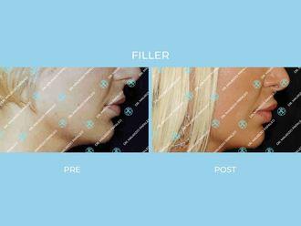 Filler-767879