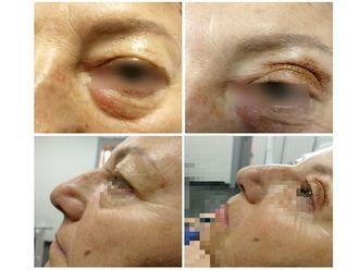 Blefaroplastica non chirurgica-765788