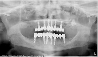 Rx implantologia a carico immediato