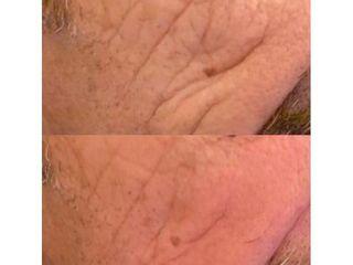 Botulino prima e dopo