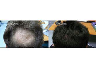 Trapianto capelli-744365