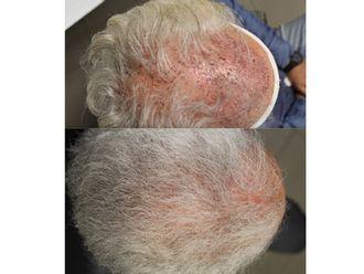 Trapianto capelli-750807