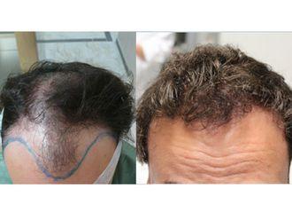 Trapianto capelli-750808