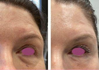 Eliminare occhiaie - Clinica San Martino