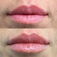 Filler labbra