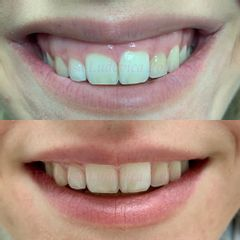 Gummy smile - Dott.ssa Ludovica Pollifrone
