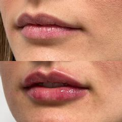 Filler labbra - Dott.ssa Ludovica Pollifrone