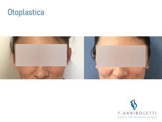 Otoplastica - 304579