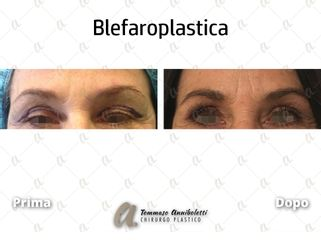 Blefaroplastica - Dott. Tommaso Anniboletti