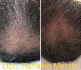Alopecia - Dott. Raffaele Merola