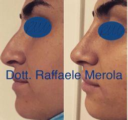 Rinofiller e Filler labbra - Dott. Raffaele Merola