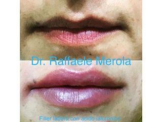 Filler labbra - Dott. Raffaele Merola