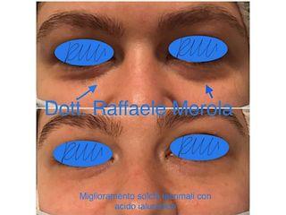 Eliminare occhiaie - Dott. Raffaele Merola