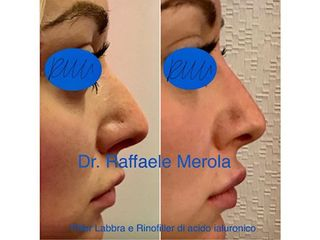 Rinofiller - Dott. Raffaele Merola
