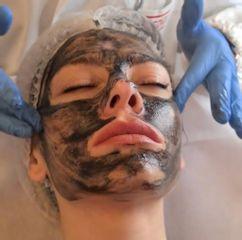 Carbon Mask - Dott. Raffaele Merola