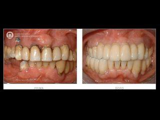 Riabilitazione protesica prima e dopo