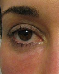 Occhiaie dopo il trattamento locale con idrossiapatite di calcio