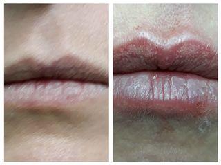 aumento labbra prima dopo