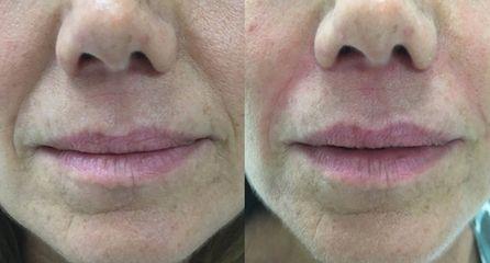 Filler naso labiali - Equipe Estetica