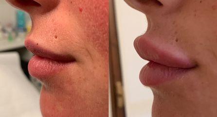 Filler labbra - Equipe Estetica