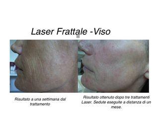 Laser Frattale prima e dopo