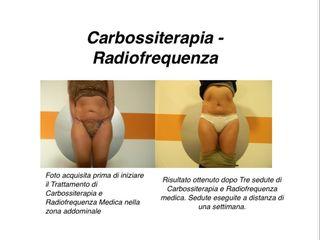 Carbossiterapia e Radiofrequenza prima e dopo