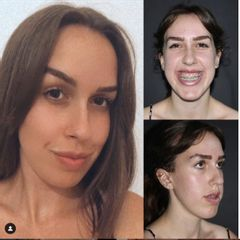 Ortodonzia prima dopo