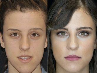 Chirurgia Maxillo facciale-772757