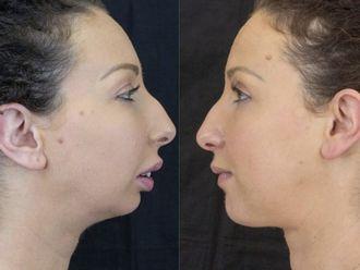 Chirurgia Maxillo facciale-772758