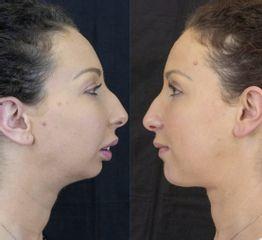 Chirurgia Maxillo facciale prima dopo