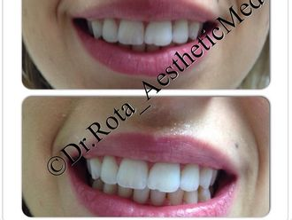 Sbiancamento denti-750143