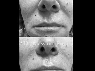 Filler acido ialuronico Rughe Naso Geniene