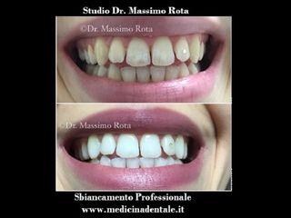 Sbiancamento Denti Professionale