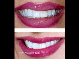 Sbiancamento Denti Professionale Prima & Dopo