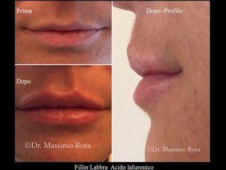 Filler Acido Ialuronico Labbra