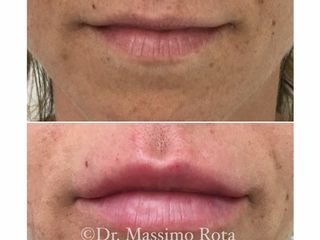 Acido Ialuronico Labbra Prima e Dopo