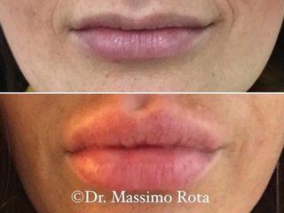 Filler Acido Ialuronico Labbra Prima e Dopo