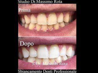 Sbiancamento denti-761123