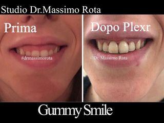 Gummy Smile Prima e Dopo
