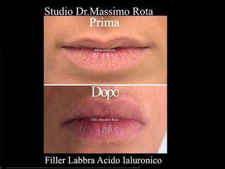 Filler Labbra Acido Ialuronico Prima e Dopo
