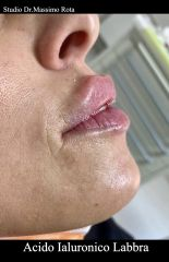 Filler Labbra Acido Ialuronico