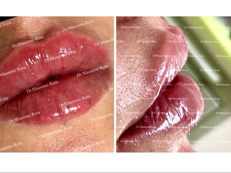 Dr. Massimo Rota - Medicina Estetica & Dentale Integrata
