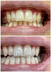 Sbiancamento Denti Professionale - Dr. Massimo Rota
