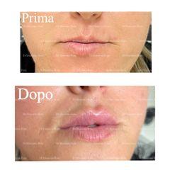 Filler labbra - Dr. Massimo Rota