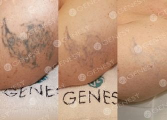 Rimozione laser tatuaggio braccio prima e dopo