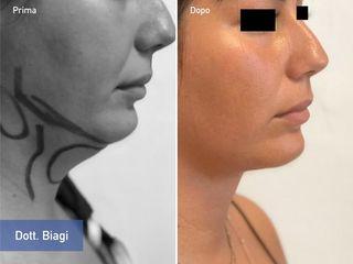Liposuzione pappagorgia prima e dopo