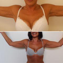 lifting delle braccia - Dott. Cristiano Biagi