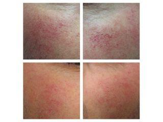 Vene varicose prima e dopo