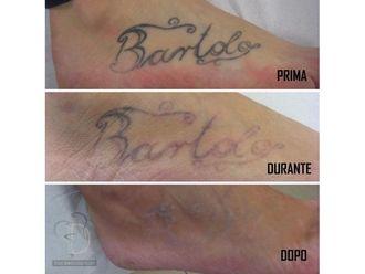 Rimozione tatuaggi-770641