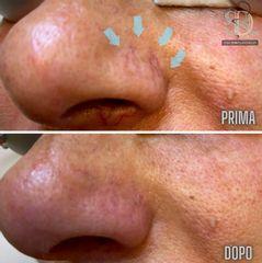 Capillari - Studio Dermatologico Ricciuti
